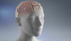 New Treatment for Deadliest Brain Cancer Available at UVA