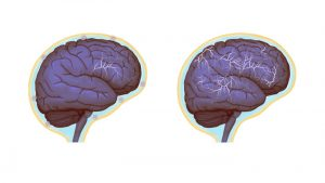 Normal brain activity, left, and a hyper-connected brain. (Images by Anita Impagliazzo, UVA Health System)