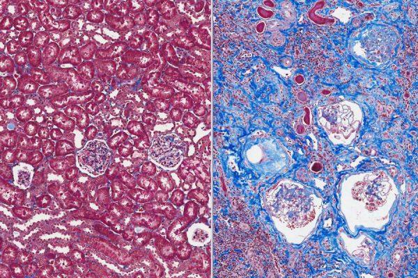 Comparison of normal fibrosis to excessive fibrosis