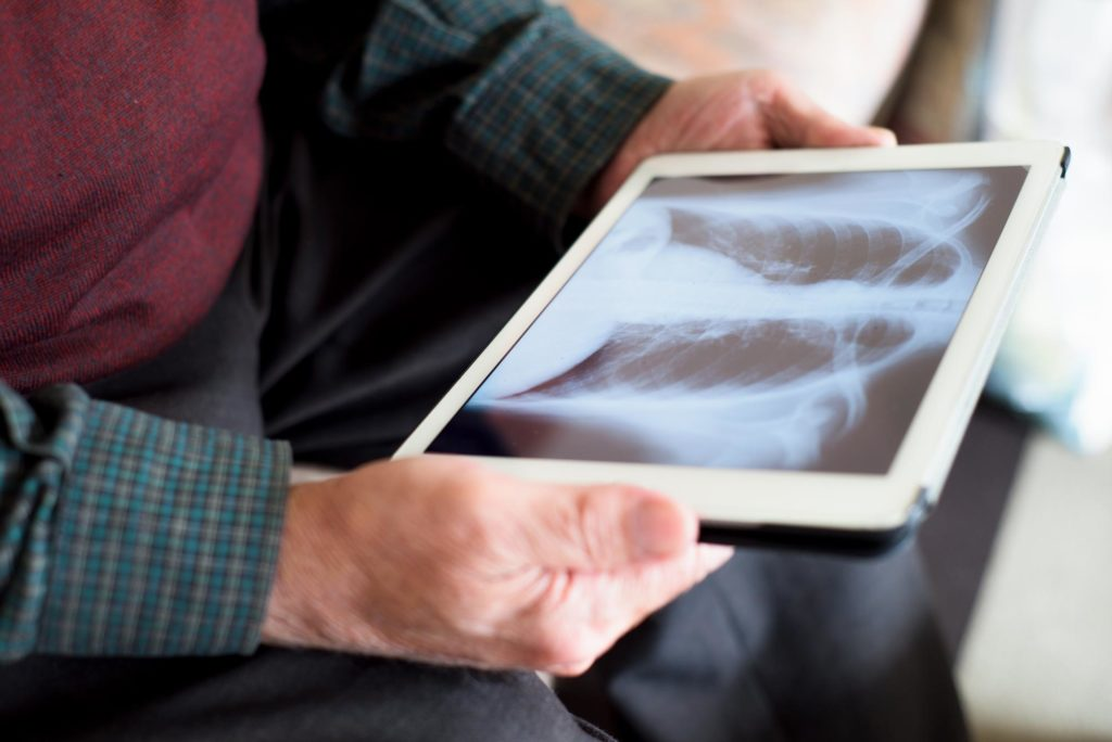 Image: Elderly patient looking at tablet screen showing ex-ray